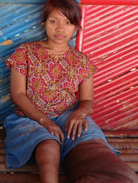 인도네시아의 한 여성이 왼쪽 다리가 코끼리 다리처럼 커지는 '코끼리피부병'(elephantiasis·상피병)을 앓고 있는 인도네시아에 사는 아나스타샤 아르논스 렌스. 온라인 모금 kitabisa 사이트 캡처