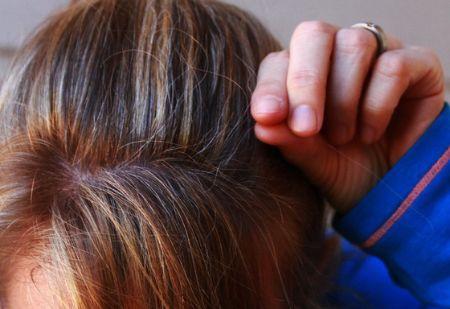 탈모는 비단 중년만의 문제는 아니다. 사춘기부터 20대에서도 얼마든지 발생할 수 있으므로 탈모 치료는 골든타임을 놓치지 않는 것이 중요하다. [사진 pxhere]