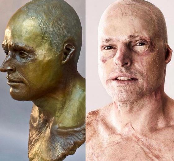 영국 특수부대에서 근무하던 제이미 헐(오른쪽)은 14년전 비행기 사고로 전신 63%에 화상을 입고 살아남았다. 그의 모습을 브론즈상으로 제작한 것(왼쪽)[인스타그램]