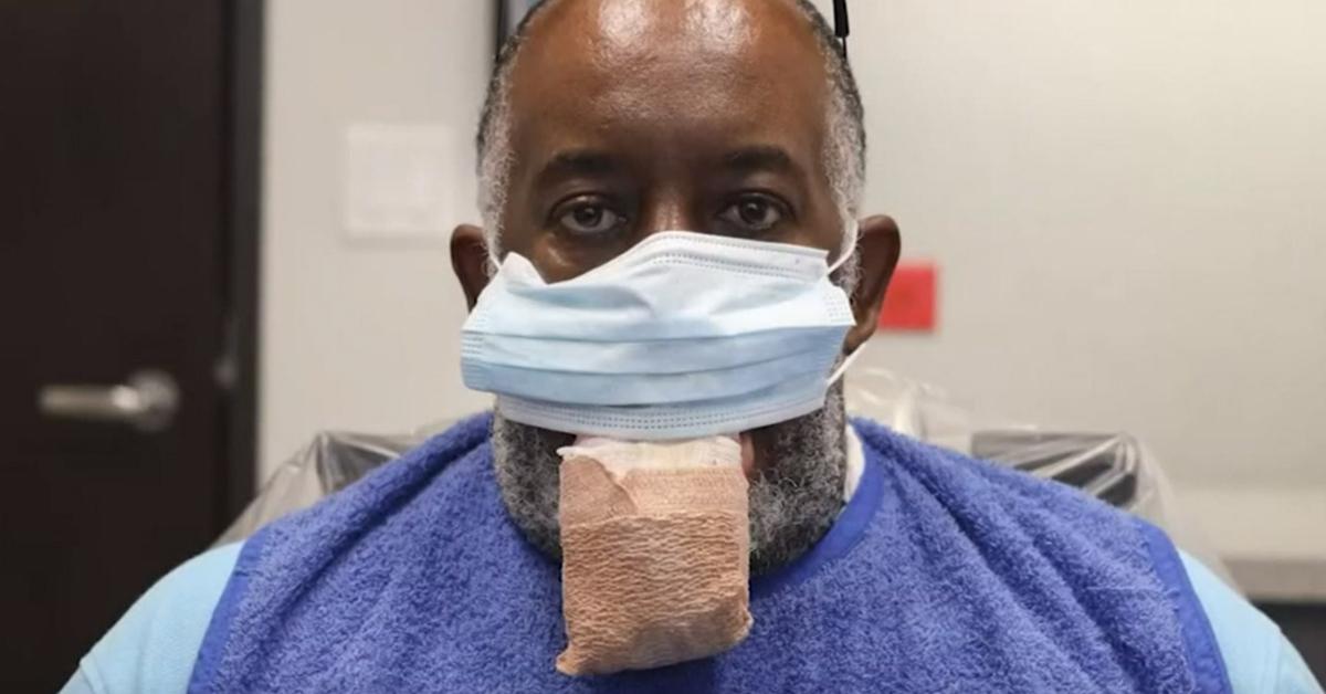 미국 휴스턴에 사는 앤토니 존스는 최근 신종 코로나바이러스 감염증(코로나19) 확진 후 대설증이 발병했다. 유튜브 캡처