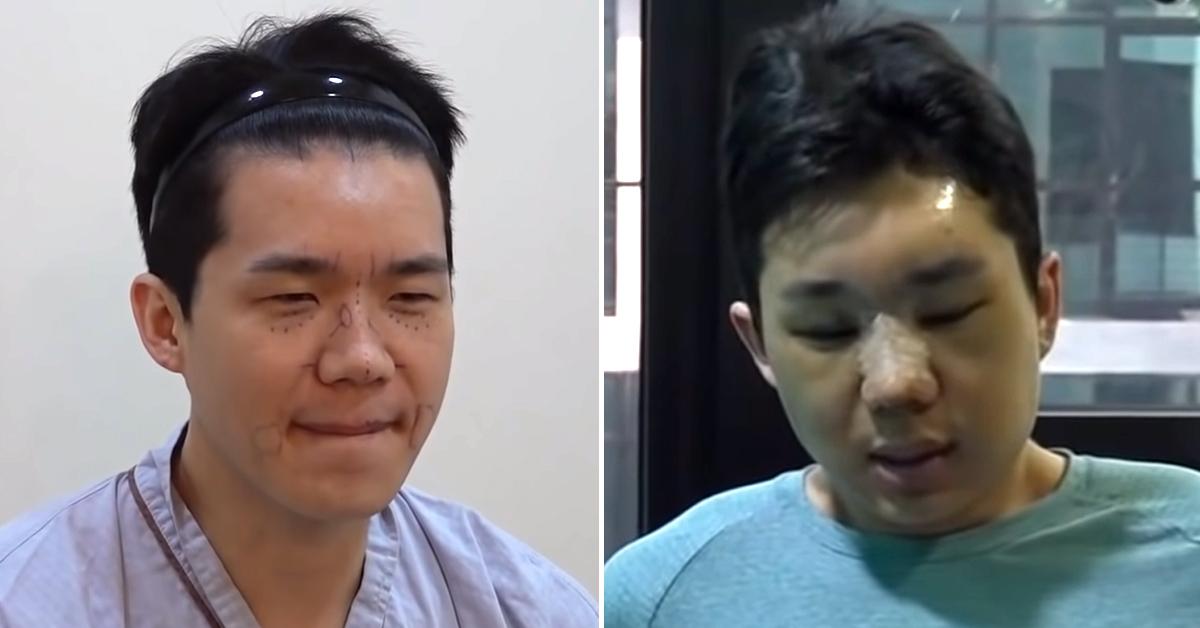 유튜브 채널 '보개미TV'를 통해 유튜버 보겸이 성형수술하는 모습을 공개했다. 유튜브 캡처
