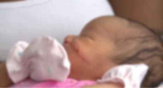 제왕절개 수술 도중 메스에 의해 얼굴에 큰 상처를 입은 신생아 카이아니 윌리엄스. 아기의 부모는 현지 언론을 통해 이 사실을 알리며 상처 입은 아기의 얼굴을 공개했다. 아이의 상처는 13발 봉합한 상태다. 상처가 난 아기의 얼굴 사진은 흐리게 처리했다. [미국 매체 kron4 홈페이지 캡처]