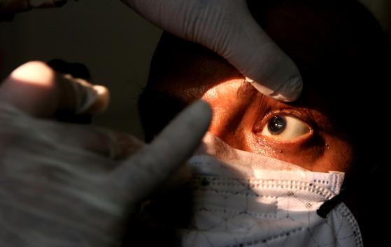 안구를 진단받고 있는 검은곰팡이증 의심 환자. 병세가 악화되면 눈을 적출하는 경우도 있다. 신화=연합뉴스