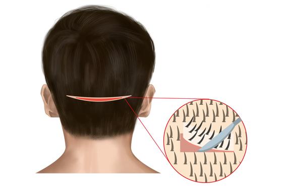 [더오래]친구 뒷머리 귀 높이 부분에 긴 흉터, 무슨 수술한 걸까