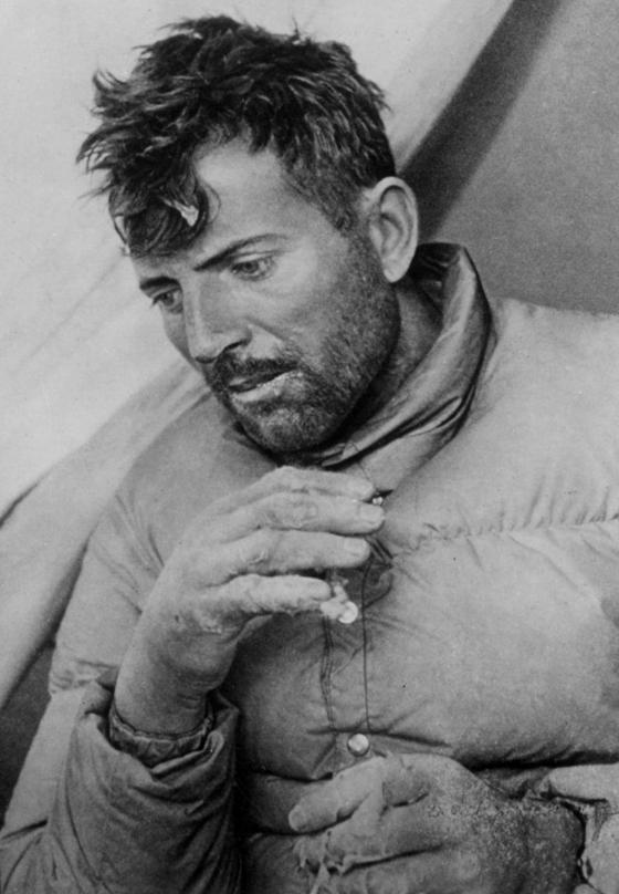1950년 6월 프랑스의 모리스 에르조그가 안나푸르나 등정 성공 뒤 하산 중 찍은 사진. 그의 손은 동상에 걸려 처참한 상태였다. 몇 시간 뒤, 그의 이 손가락은 모두 사라졌다. 중앙포토