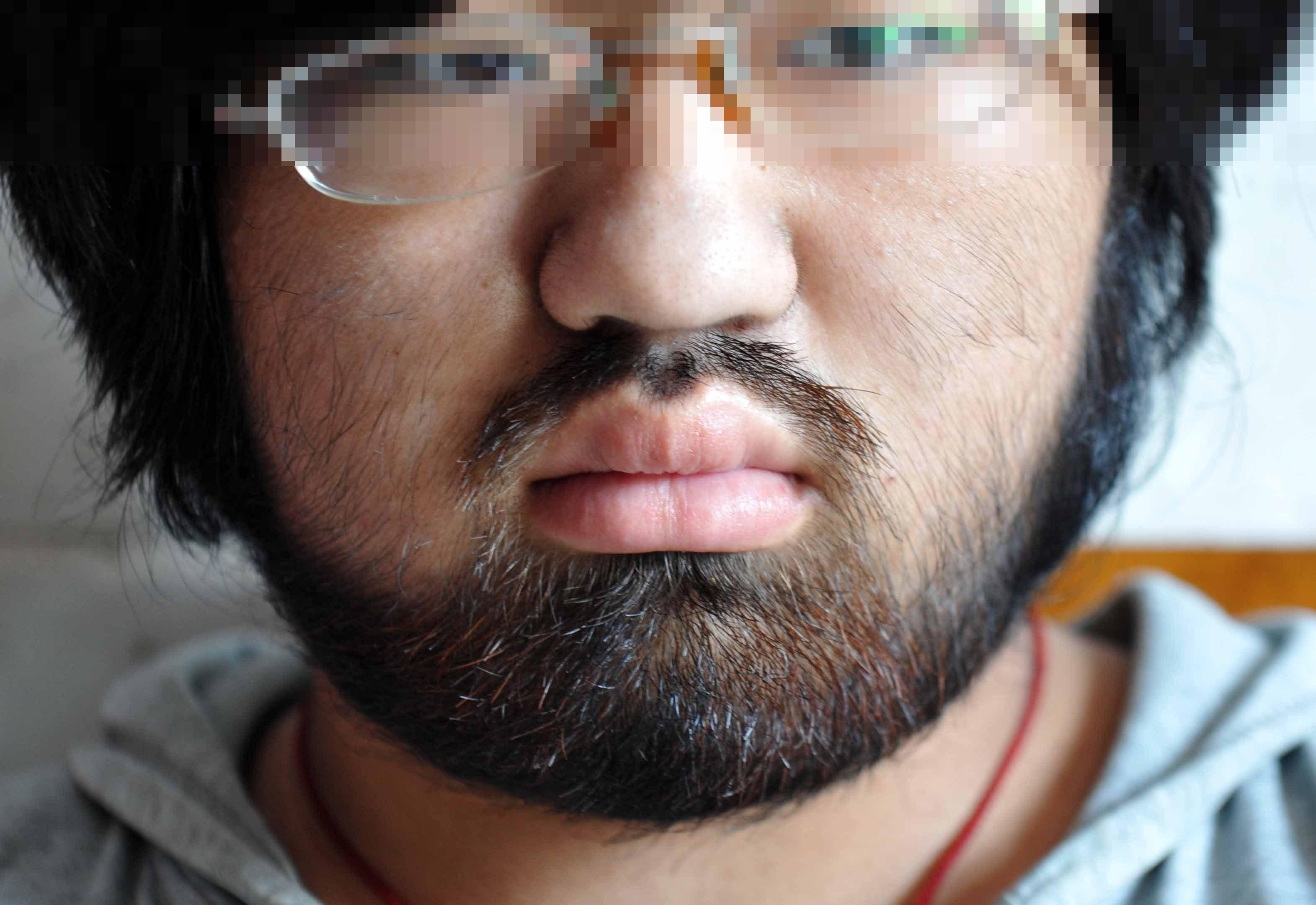 86eb740b466 16세 소녀 얼굴에 수염이...